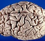 Brain_superior-lateral_view