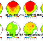 Neurofeedback Before & After mirasol.net