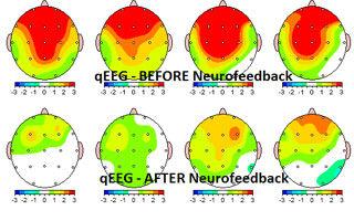 MRT Aufnahmen vor und nach einer EMDR Trauma Therapie